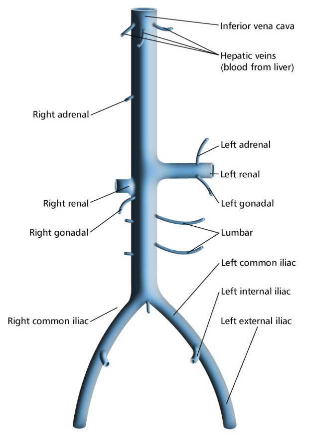 Inferior Vena Cava Syndrome Modernheal