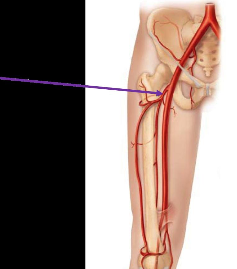 Femoral Artery Access Modernheal