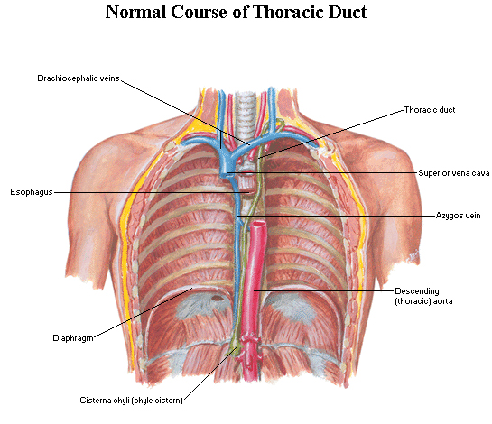 Thoracic Duct Ligation Modernheal
