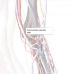 cephalic vein blood clot