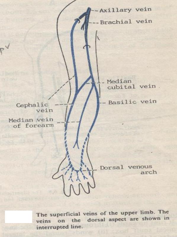 Cephalic Vein Thrombosis Modernheal