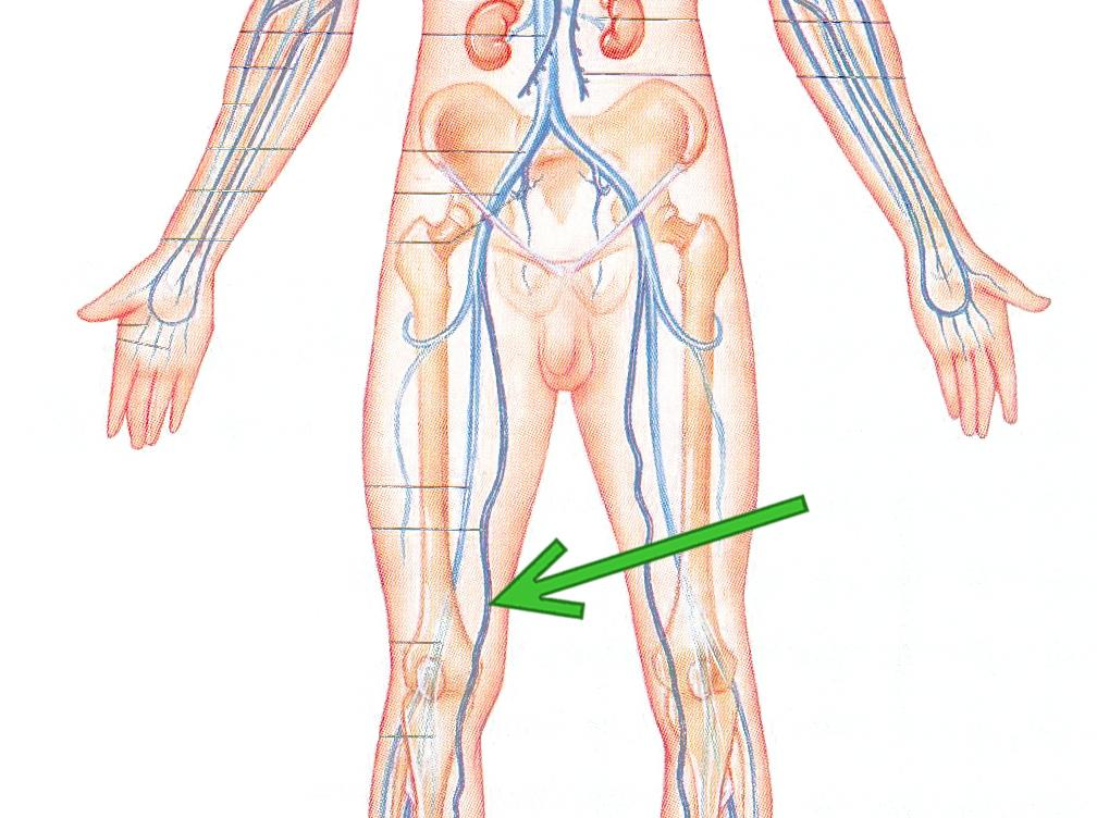 great saphenous vein cadaver - ModernHeal.com