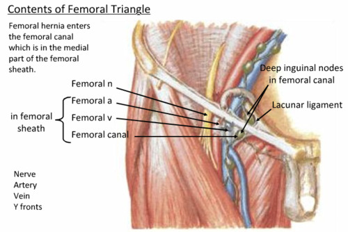 inguinal ligament attachment - ModernHeal.com Female Inguinal Hernia Anatomy