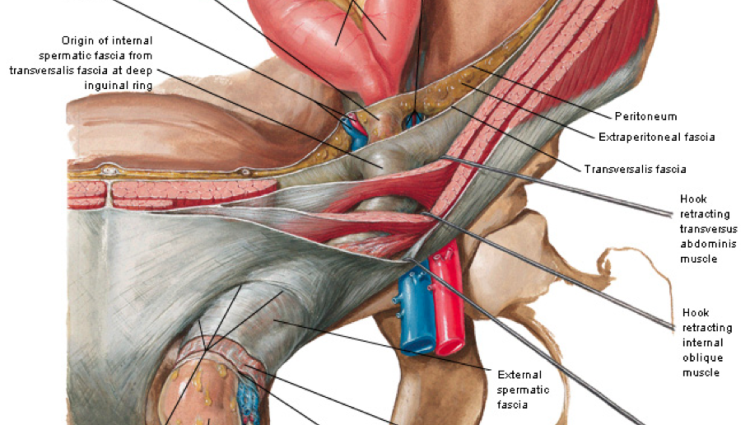 inguinal ligament ct - ModernHeal.com Female Inguinal Hernia Anatomy
