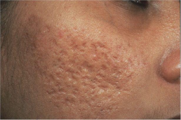 Boxcar acne scars