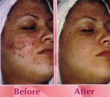 Cleaning acne scars