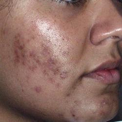 Keloid acne scars