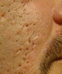 Ice pick acne scars